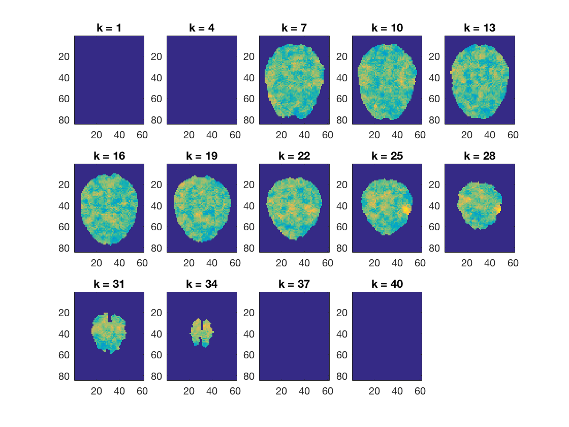 gallery_demo_fmri_searchlight_naive_bayes_1