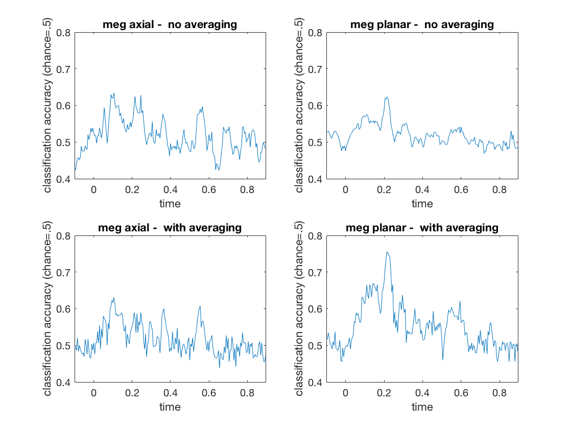 gallery_demo_meeg_timeseries_classification_1